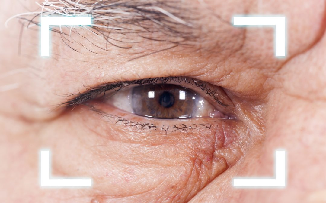 Are fees for cataract surgery still too high?